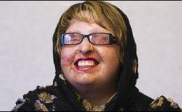 تہران: خاتون نے تیزاب پھینکنے والے کو معاف کردیا