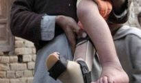 خیبرپختونخوا میں مزید 2 بچے پولیو کا شکار