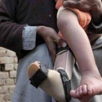 Polio Cases