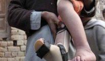خیبرپختونخوا میں مزید 2 پولیو کیسز رپورٹ، تعداد 61 ہو گئی