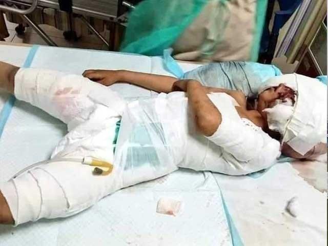 لاڑکانہ میں کتوں کے حملے میں شدید زخمی 6 سالہ حسنین دم توڑ گیا