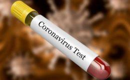 خیبرپختونخوا میں کورونا وائرس کے مزید 4 مشتبہ کیسز کلیئر قرار