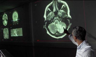 Coronavirus - Brain