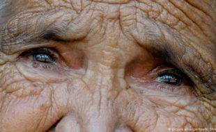 اندھے پن کا علاج، سائنسدان کے لیے 1 ملین یورو کا انعام