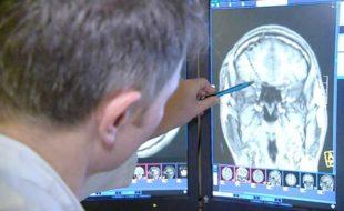 مرگی کے علاج کے لیے جدید تحقیق
