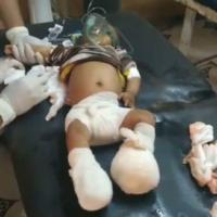 Western Yemen Civilians