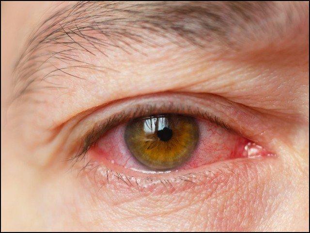 فضائی آلودگی، مستقل نابینا پن کی وجہ بن سکتی ہے