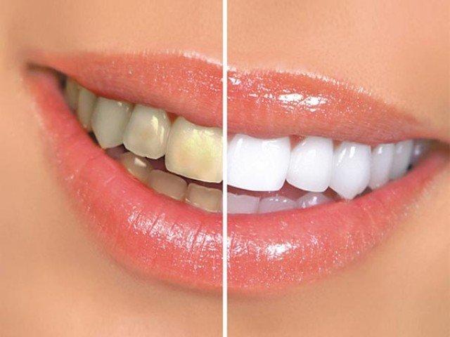 دانتوں کی صفائی ضروری ہے… لیکن کب؟
